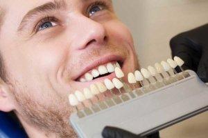 man preparing for teeth whitening orlando trusts