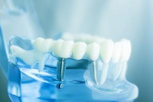 teeth and bridges - dental care