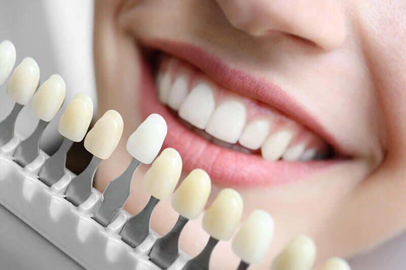 woman choosing tooth color benefits from cosmetic dentistry
